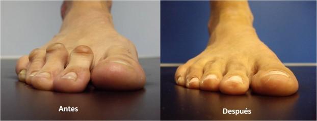 Instituto cordob s de traumatolog a for Operacion de pies